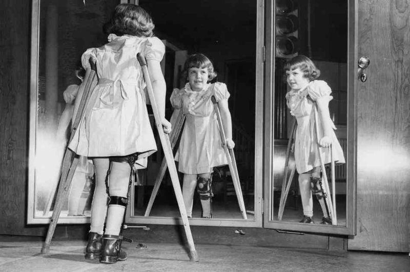 Photographie ( Polio